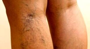 effective methods for treating varicose veins